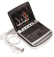 Аппарат УЗИ Chison SonoBook 9