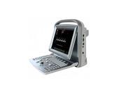 Новый портативный УЗИ аппарат CHISON ECO5
