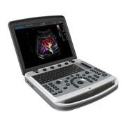 Новый портативный УЗИ аппарат CHISON SONOBOOK 9 с двумя датчиками